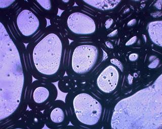 Blancs en neige vus au microscope.jpg