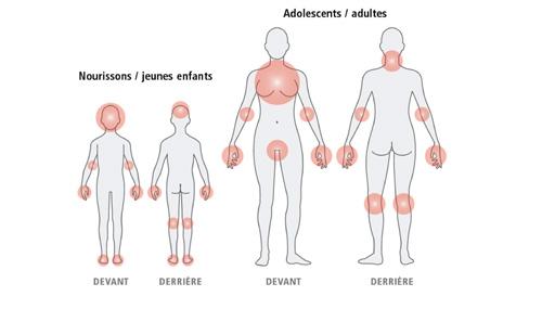 003 eczema.jpg