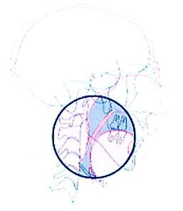 ronflement5.jpg