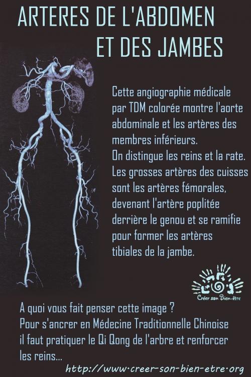 artere -2 copie.jpg