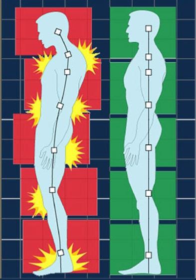 bilan postural.jpg