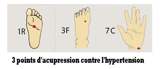 Points hypertension.jpg