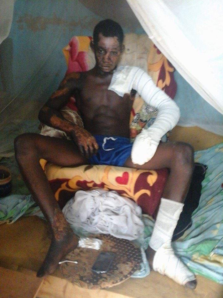 Un des blessu00E9s lors  de  l'incendie de la maison du    pru00E8sident de l'ADF-RDA u00E0 Ouahigouya.jpg