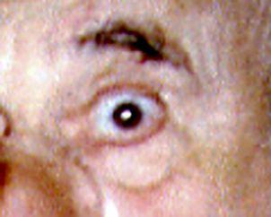 l'oeil de Fabre