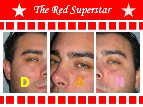 [#DanBizet] Rss (Red SuperStar).jpg