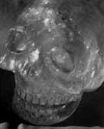 Le crâne à la croix reliquaire