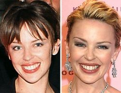 Kylie Minogue, un visage de porcelaine.