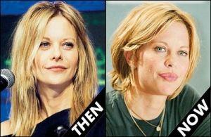 Meg Ryan, des lèvres pulpeuses.