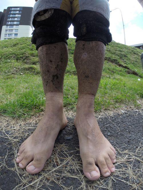 pieds de Hobbit !