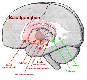 La zone du cerveau concernée par la maladie