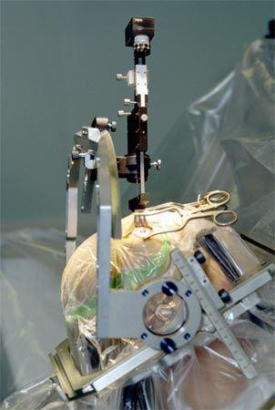Le dispositif chirurgical de la DBS