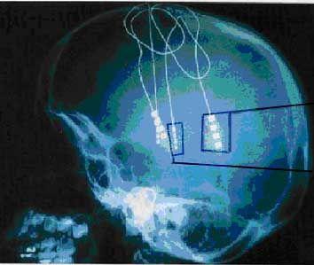Les électrodes une fois implantées dans le cerveau