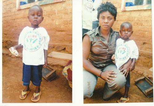 Petite fille de 7 ans souffrant de Kwashokore avec Pascaline Nsimira.jpg
