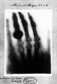 Wilhelm_Röntgen_wife_Anna_Bertha_Ludwig's_hand_1895.jpg
