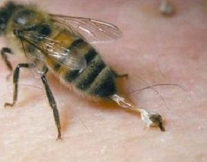 12 - 9 Piqure d'abeille.jpg