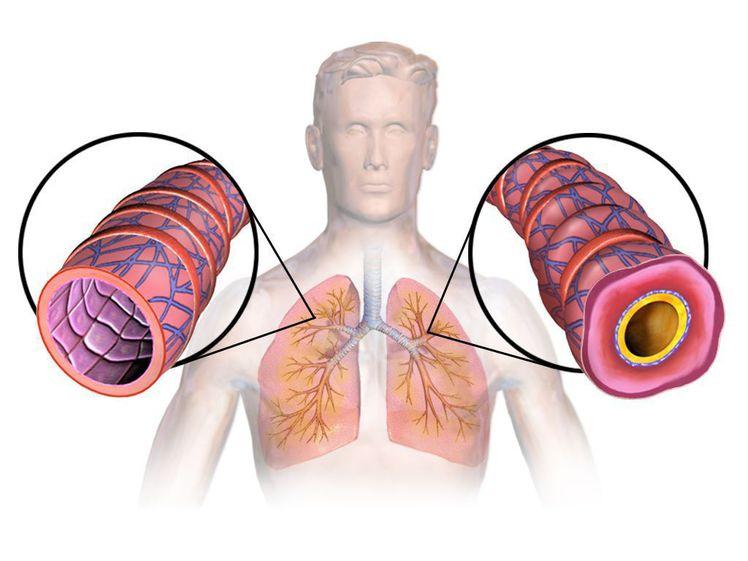 ASTHME.jpg