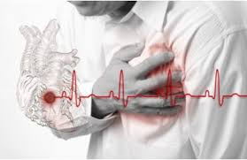 accidents cardiovasculaires.jpg