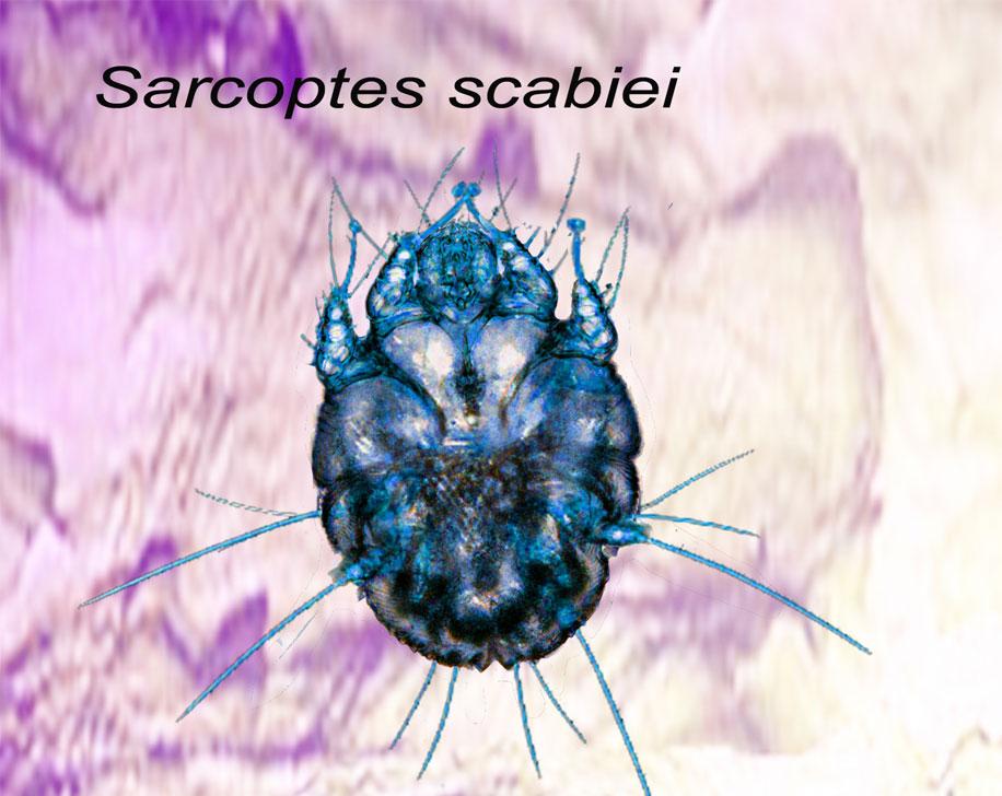 sarcoptes_scabiei.jpg
