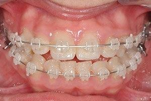 pril_c_traitement_orthodontique_bagues_ceramiques.jpg