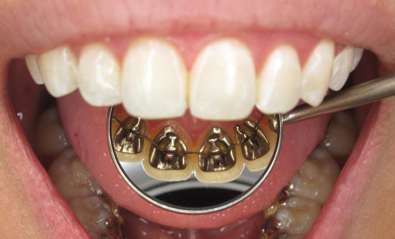 appareil-dentaire-linguall.jpg