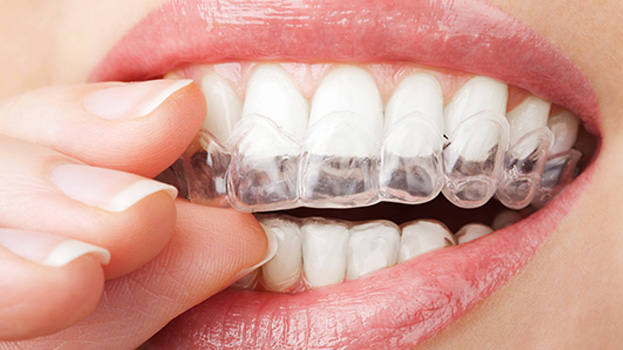 centre-dentaire-invisalign2.jpg