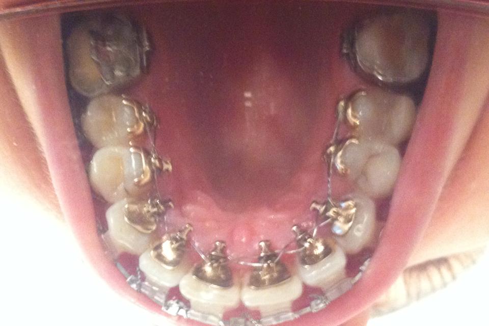 Phase Pre Operatoire Mon Parcours En Orthodontie Linguale Adulte