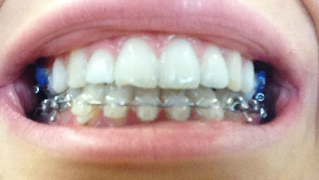 Articles Mon Parcours En Orthodontie Linguale Adulte Et Osteotomie