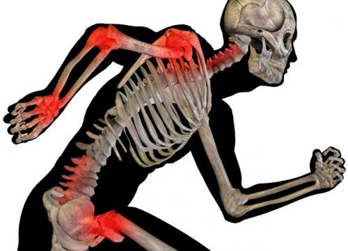 running-man-inflammation1 copie.jpg