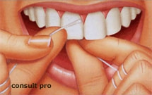 dentalyon-fiche-information-conseils-prevention-fil-dentaire.jpg