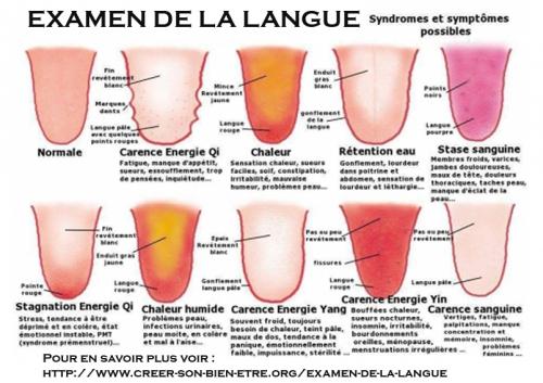Examen de la langue.jpg