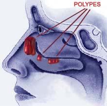 polypes nazal.jpg
