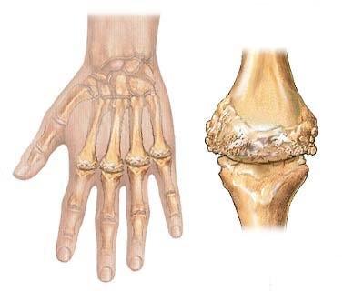 arthrose doigts.jpg