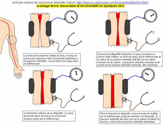 SCHÉMA PRINCIPE DE MESURE DE LA  PRESSION ARTÉRIELLE OU TENSION ARTÉRIELLE.jpg