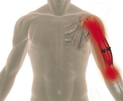 douleur bras1.jpg