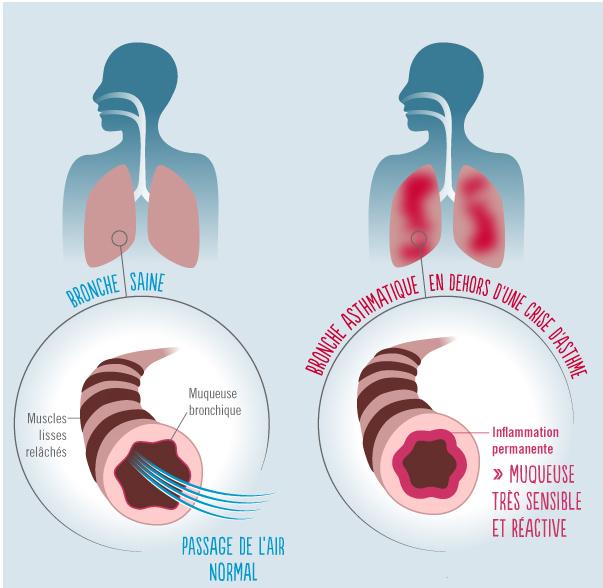 asthme-1.jpg