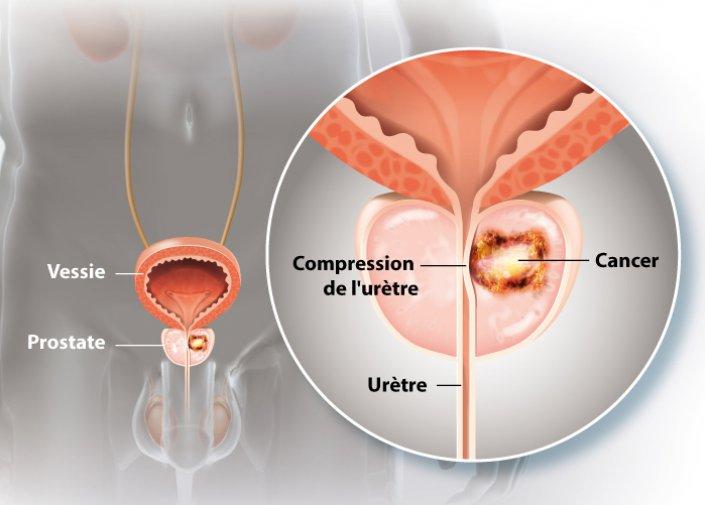 CANCER prostate[1].jpg