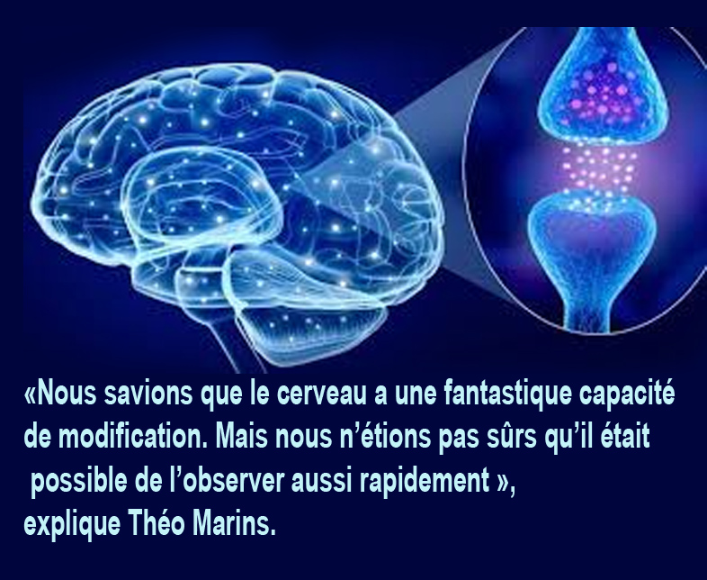 cerveau2.jpg