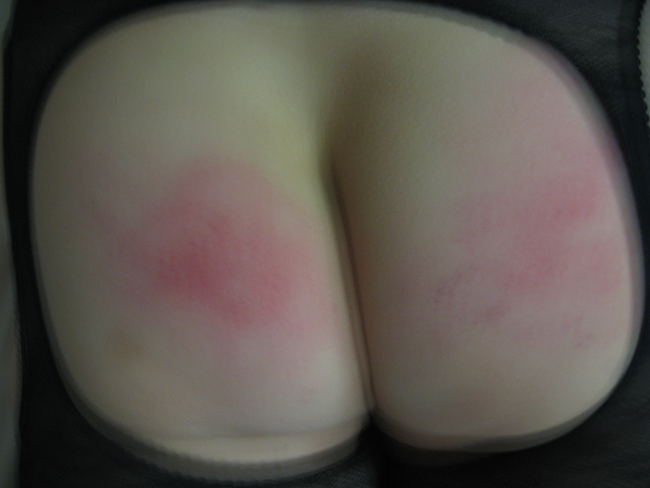 Fesses-rouges001.jpg