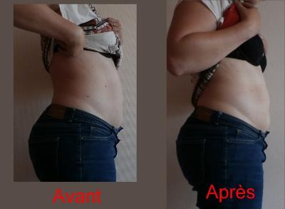 AV AP (400x293).jpg