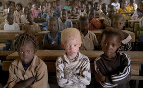 albinos-teaser_0.jpeg