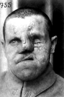 1918-Gueule-cassée.png