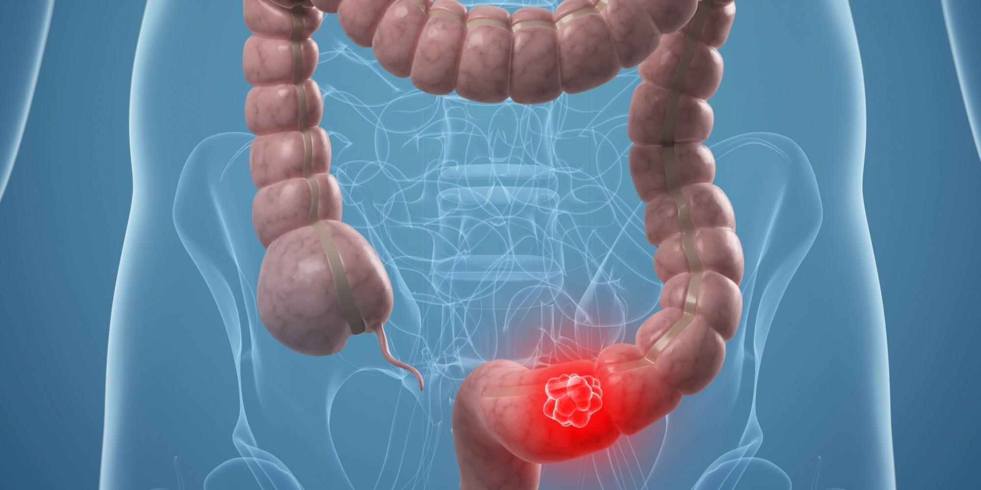 cancer-colon-shcema-intestin.jpg