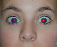 Yeux rouges.PNG