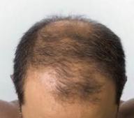 Alopécie.PNG