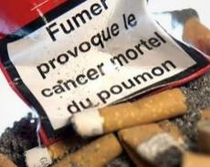 Cancer du poumon.PNG
