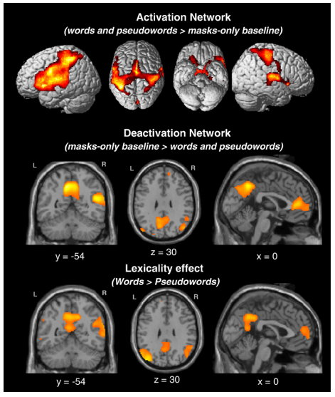Neuroimaging of subliminal priming.jpg
