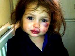 maltraitance-sur-enfants-2.jpg