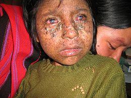 enfant de 8 ans atteinte de Xeroderma_pigmentosum_02 (photos wikipédia).jpg